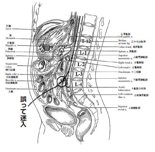 人体側面の解剖図と誤って迷入した箇所